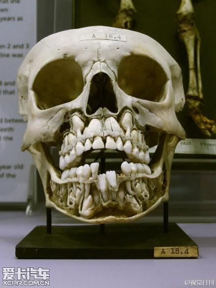 真实图解小孩换牙,比较恐怖