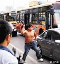 """西安市民李建利4年前""""反日游行""""中被击穿头骨 至今仍未出院"""