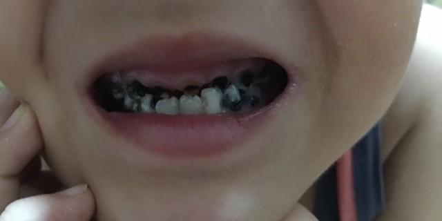 川分卡二代乳牙涂氟记