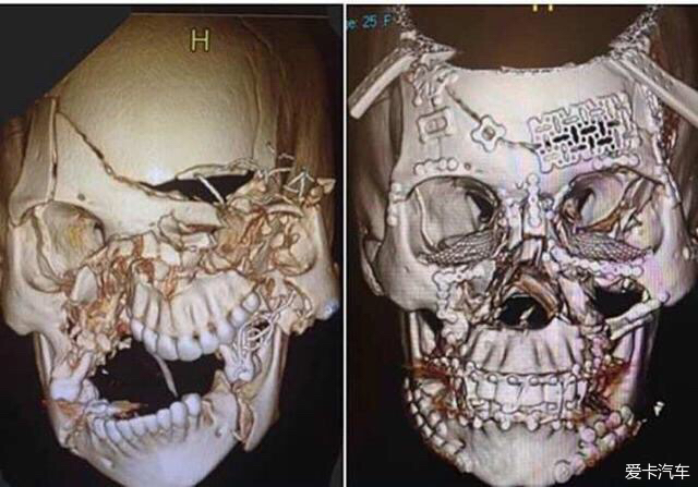 眼球摘除_头骨破碎,上颚破碎移位,左眼眶破碎,左眼球已经摘除.