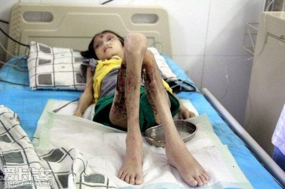 阳春女孩承受9年皮肤病折磨